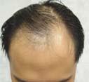 1,500 grafts/2,565 hairs