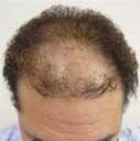 2,078 grafts / 3,437 hairs
