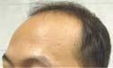 2,523 grafts/4,630 hairs