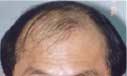 3,203 MUG & FUG/9,382 hairs