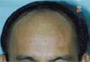 5,258 grafts/12,780 hairs