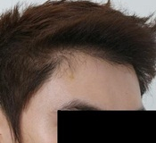 Lowering the hairline 2,101 FUGs