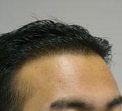 Frontal hairline restoration