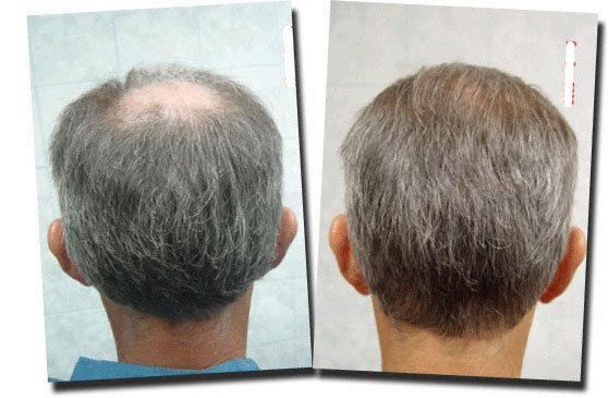 back-before-after-hair-transplant-2995-grafts-Dr-Pathomvanich