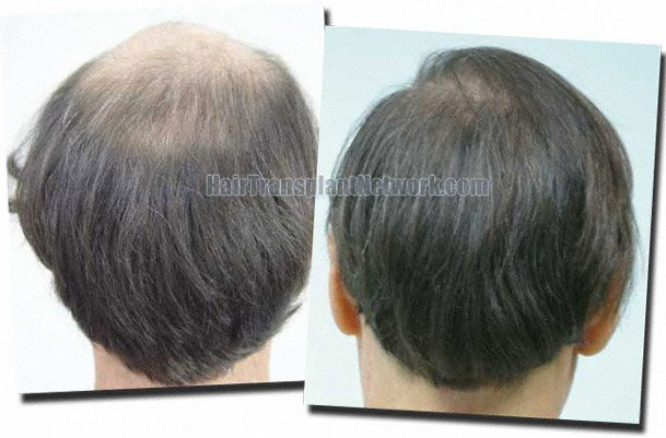back-before-after-hair-transplant-7705-grafts-Dr-Pathomvanich