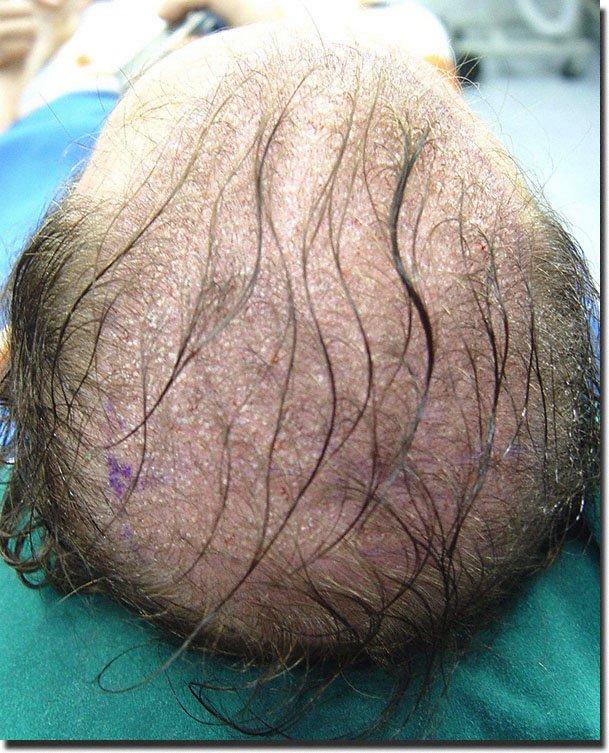 back-surgery-hair-transplant-6620-grafts-Dr-Pathomvanich