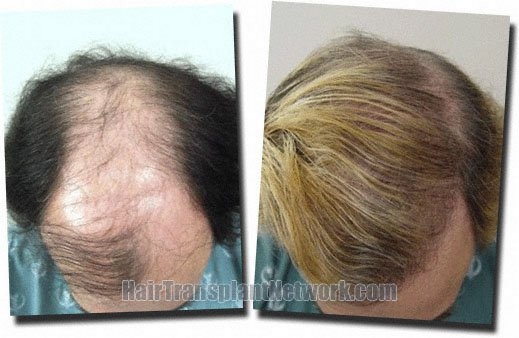before-after-top-hair-transplant-3752-grafts-Dr-Pathomvanich