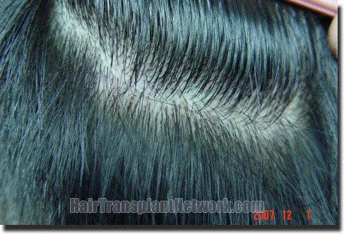 donor-area-hair-transplant-3211-grafts-Dr-Pathomvanich