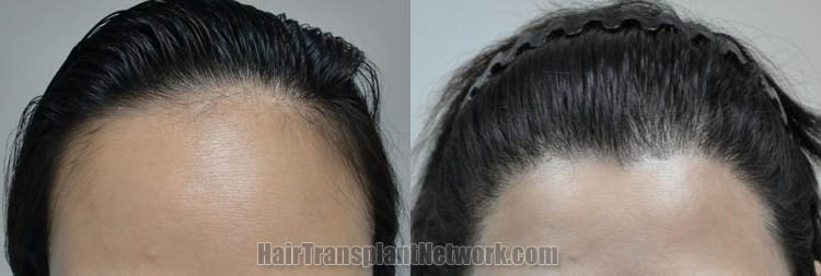 female-hair-transplant-front-170357