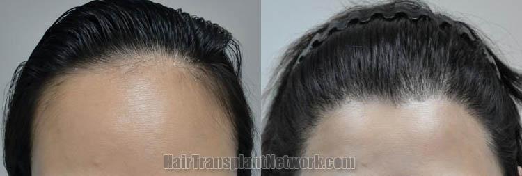 female-hair-transplant-front-170357