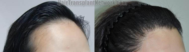 female-hair-transplant-picture-right-170357