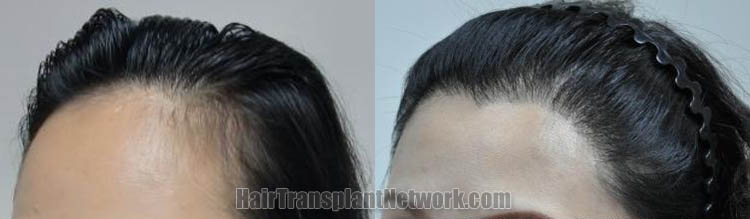 female-hair-transplant-pictures-left-170357