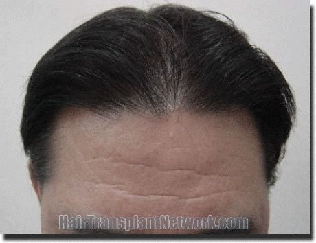 front-after-hair-transplant-2078-grafts-Dr-Pathomvanich