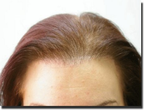 front-after-hair-transplant-3092-grafts-Dr-Pathomvanich