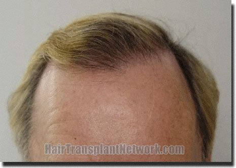 front-after-hair-transplant-3752-grafts-Dr-Pathomvanich