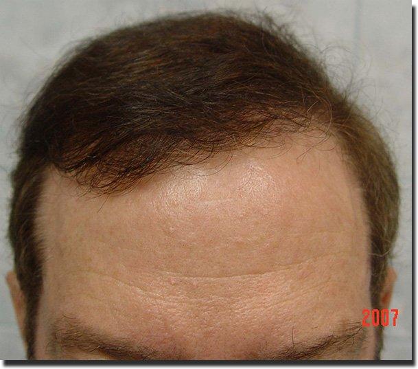 front-after-hair-transplant-6620-grafts-Dr-Pathomvanich