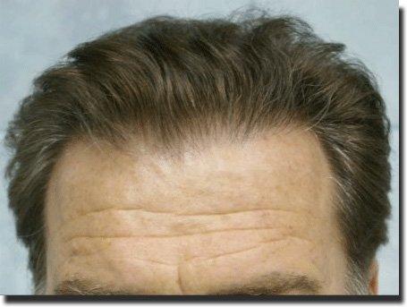 front-after-hair-transplant-Dr-Pathomvanich