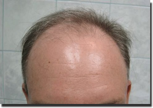 front-before-hair-transplant-2995-grafts-Dr-Pathomvanich