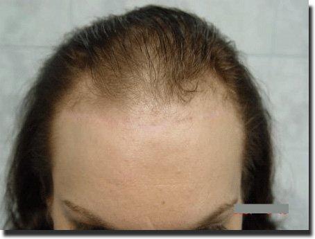 front-before-hair-transplant-3092-grafts-Dr-Pathomvanich