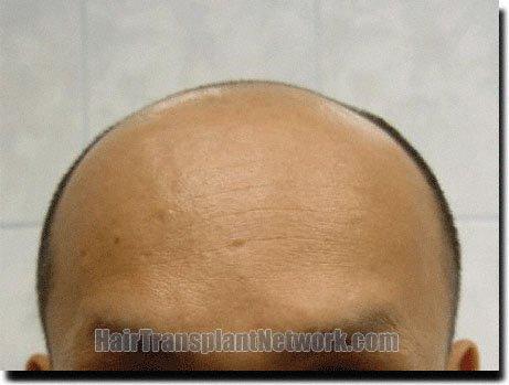 front-before-hair-transplant-3211-grafts-Dr-Pathomvanich