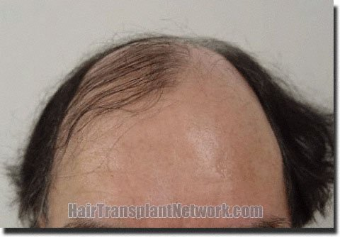 front-before-hair-transplant-3752-grafts-Dr-Pathomvanich