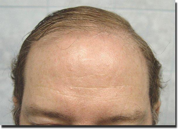 front-before-hair-transplant-6620-grafts-Dr-Pathomvanich