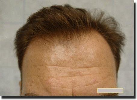front-before-hair-transplant-Dr-Pathomvanich