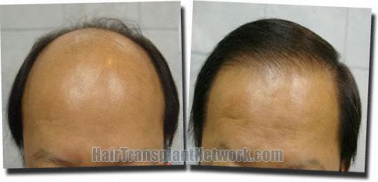 front-hair-transplant-3659-grafts-Dr-Pathomvanich