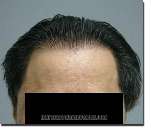 hair-replacement-pathomvanich-2543-after-front