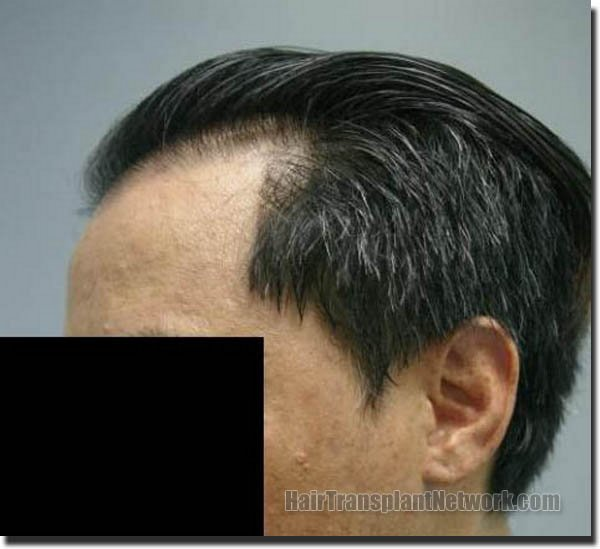 hair-replacement-pathomvanich-2543-after-left