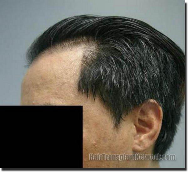 hair-replacement-pathomvanich-2543-after-left