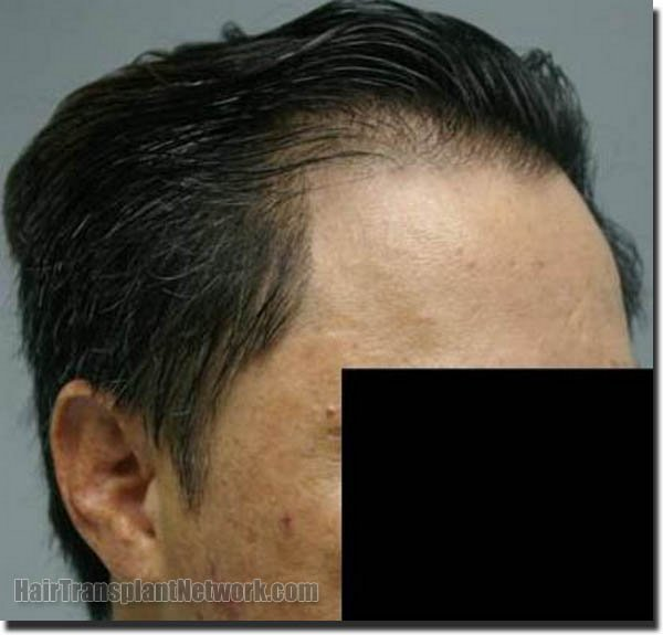 hair-replacement-pathomvanich-2543-after-right