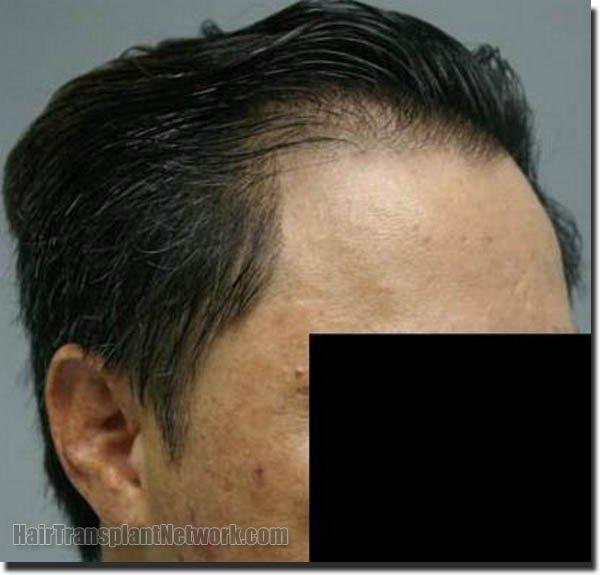 hair-replacement-pathomvanich-2543-after-right