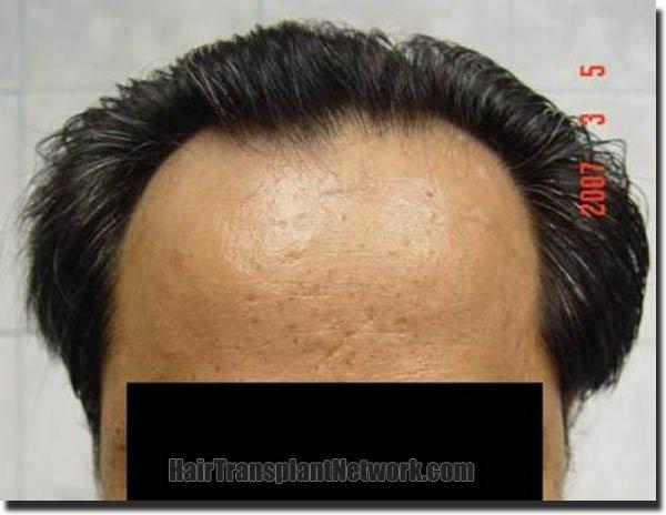 hair-replacement-pathomvanich-2543-before-front