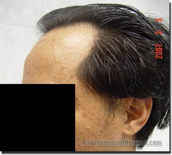 hair-replacement-pathomvanich-2543-before-left