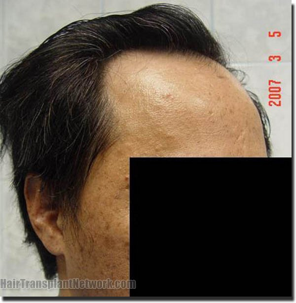 hair-replacement-pathomvanich-2543-before-right