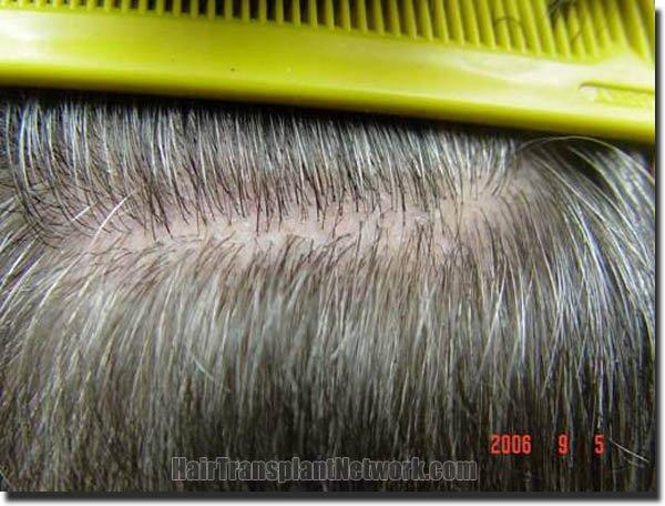 hair-replacement-pathomvanich-2995-after-scar