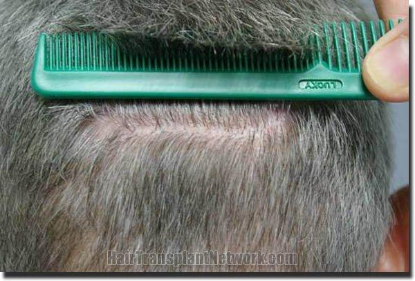 hair-replacement-pathomvanich-2995-after-scar1