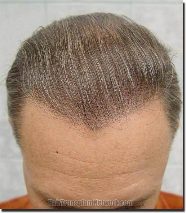 hair-replacement-pathomvanich-2995-after-tilt-down