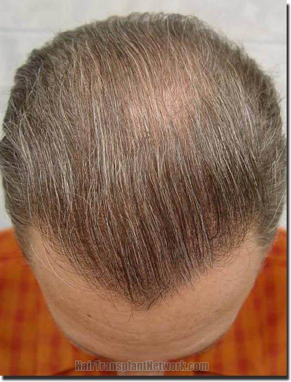 hair-replacement-pathomvanich-2995-after-top