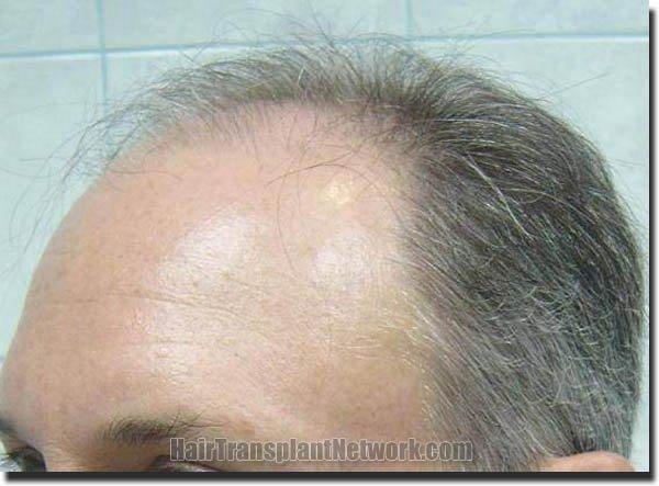 hair-replacement-pathomvanich-2995-before-left