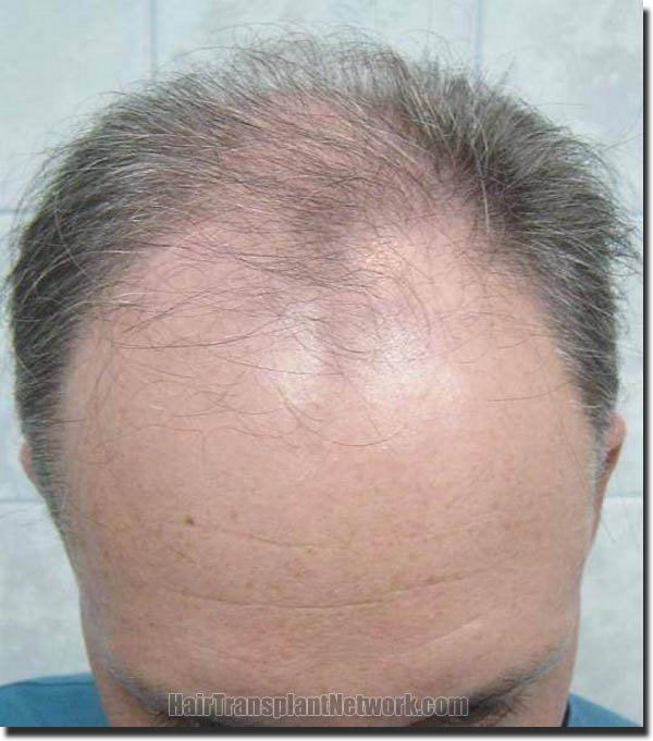 hair-replacement-pathomvanich-2995-before-tilt-down