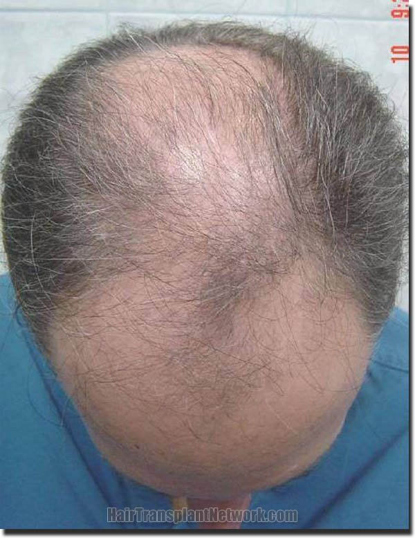 hair-replacement-pathomvanich-2995-before-top