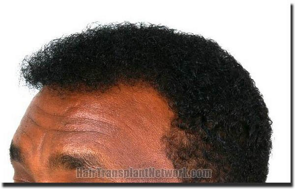 hair-replacement-pathomvanich-4308-after-left