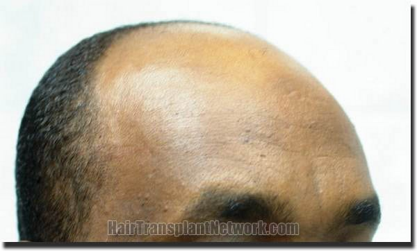 hair-replacement-pathomvanich-4308-before-right
