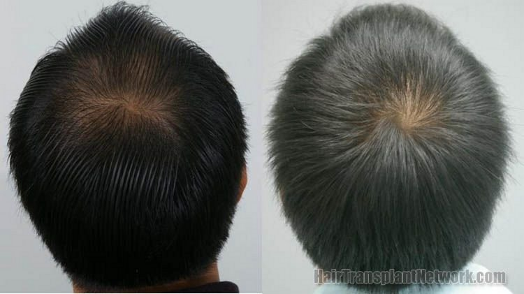 hair-replacement-photos-back-156838