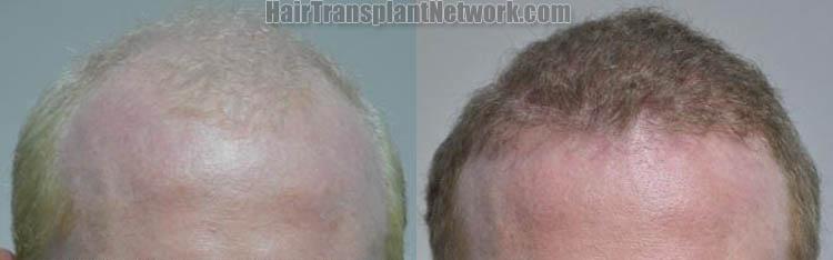 hair-restoration-front-170841