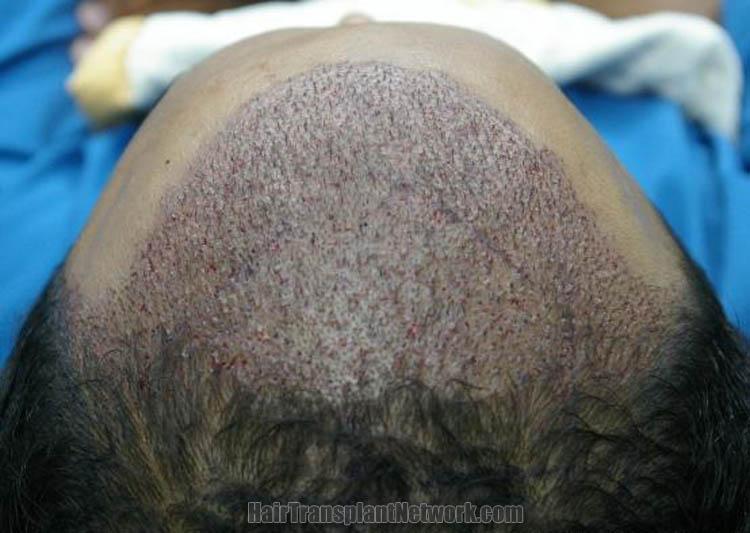 hair-restoration-image-impo-167213