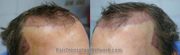 hair-restoration-image-impo-lr-166599