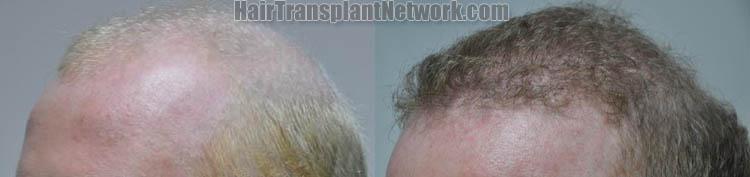 hair-restoration-image-left-170841